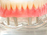 Dental Implant Brampton AXIS Dental Group